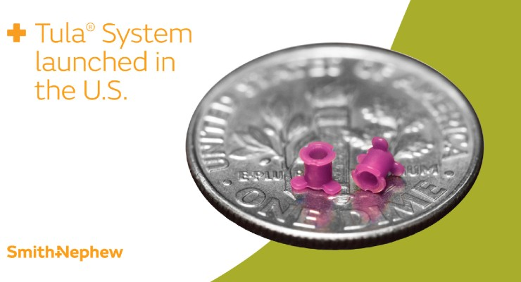 Smith+Nephew Launches Tula Ear Tube Placement System