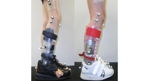 Orthotics Breakthrough Helps Children with Cerebral Palsy Walk and Play