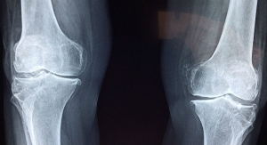 osteolabs Validates Use of OsteoTest for Early Osteoporosis Detection