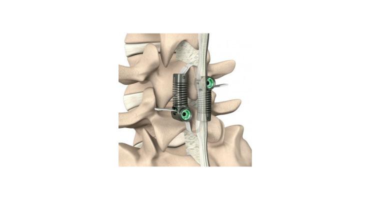 Empirical Spine Completes Degenerative Spondylolisthesis Study Enrollment