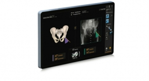 Smith+Nephew Announces New RI.HIP NAVIGATION for Total Hip Arthroplasty