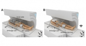 Scientists Suggest Device to Make Breast MRI More Effective