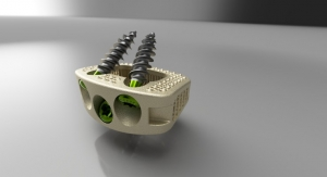 First 3D Printed HAnano Surface Modified Implant Gets FDA Approval