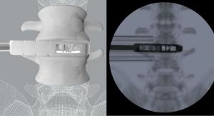 CoreLink Releases Oblique Lumbar Interbody Fusion Instrument Set