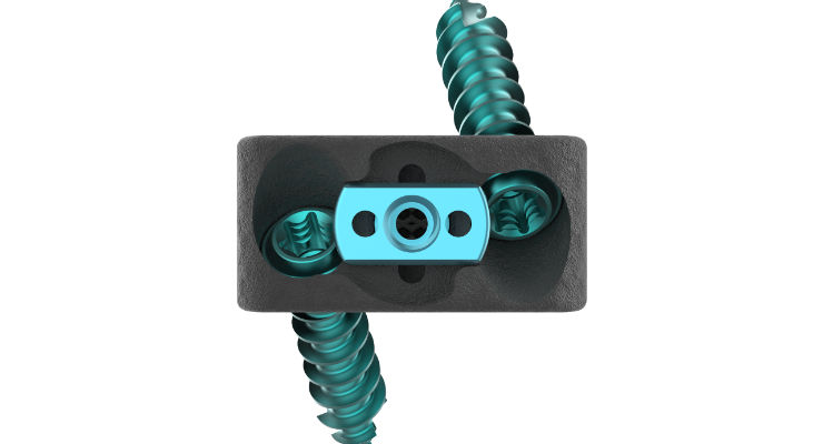 Nexxt Spine Releases Stand Alone Cervical Turn Lock System