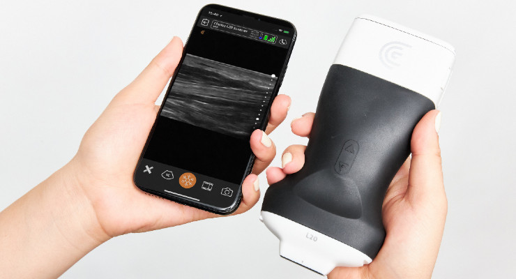 Clarius Introduces an Ultra-High Frequency Handheld Ultrasound Scanner