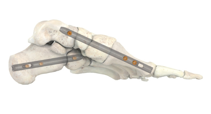 Stryker's T2 ICF Nail System Offers Foot Surgeons New Option