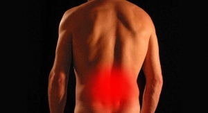 Abbott Begins Study of BurstDR Stimulation for Non-Operative Low Back Pain