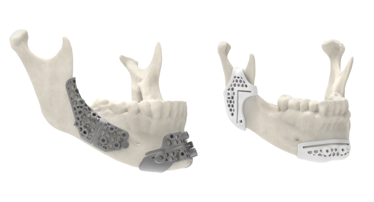 3D Systems Cleared by FDA for Improved Patient-Matched Surgical Guidance