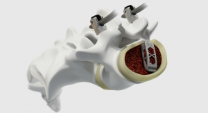 NASS News: Medtronic Launches Adaptix Interbody System
