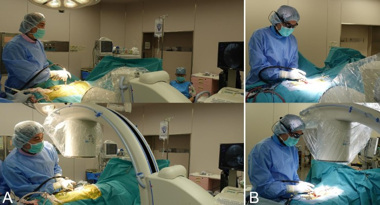 Eyeglass-Attached Display Provides Fluoroscopic Guidance During Spine Surgery