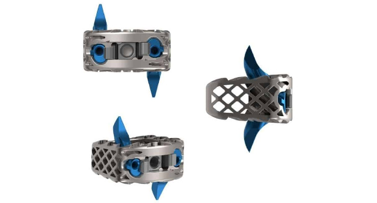 Genesys Spine Launches 3D-Printed Cervical Stand-Alone Cage