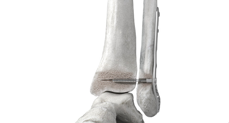 DePuy Synthes Launches FIBULINK Syndesmosis Repair System