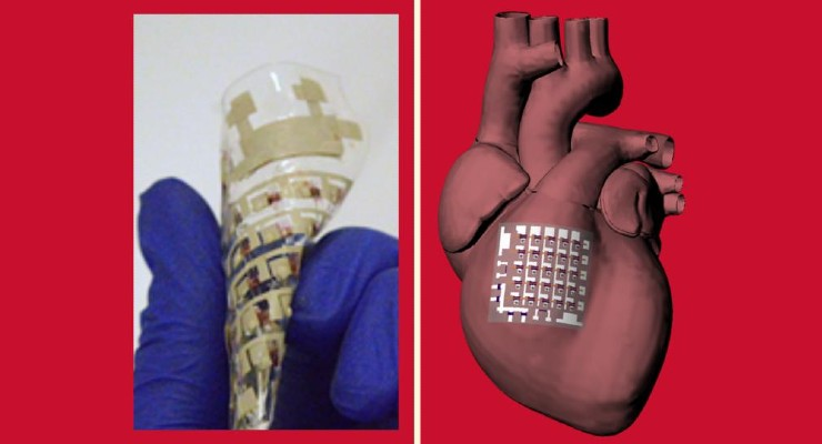 Rubbery Bioelectronic Cardiac Patch Can Monitor, Treat Heart Disease