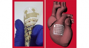 University of Houston: Implantable Device Can Monitor, Treat Heart Disease