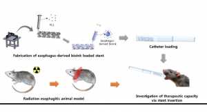 Biodegradable 3D Printed Stents Treat Esophageal Inflammation