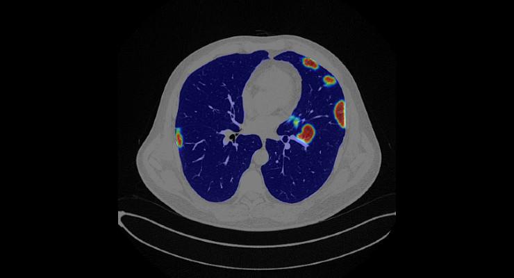 RSNA News: RADLogics' AI-Powered COVID-19 Medical Imaging Solutions
