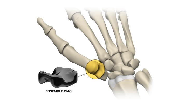 Ensemble Orthopedics Receives FDA Clearance for Implant