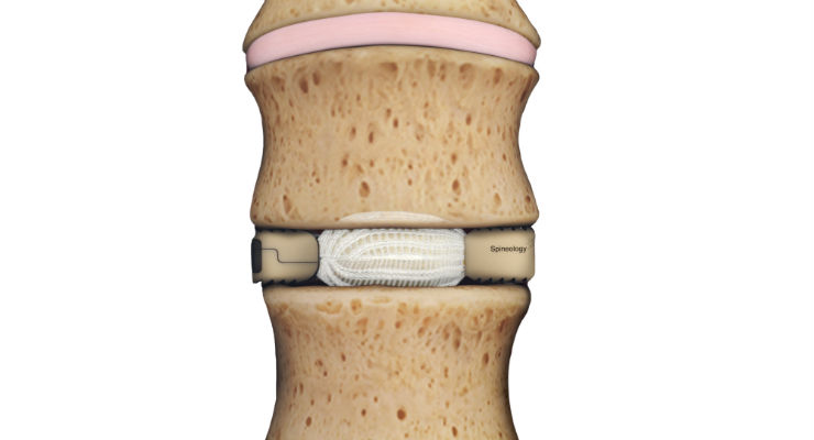 Spineology Completes Enrollment in Post-Market Study of Expandable Lateral Implant