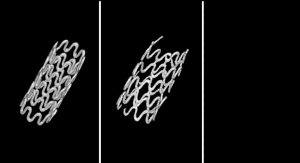 Biodegradable Magnesium-Alloy Stent for Pediatric Patients