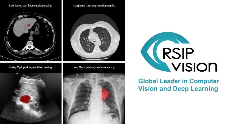 RSIP Vision Announces Versatile Medical Image Segmentation Tool