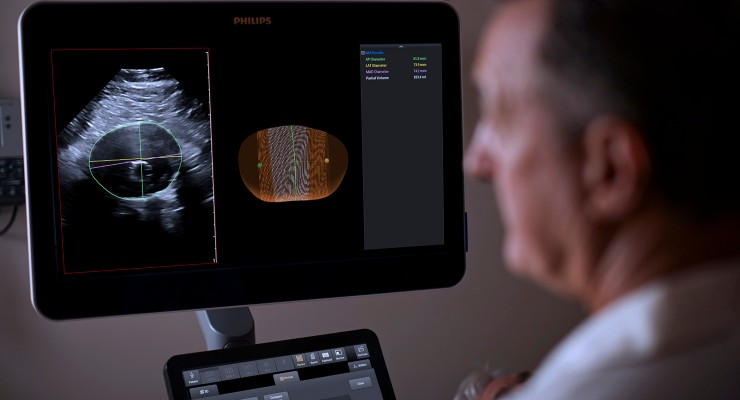 Philips Introduces Abdominal Aortic Aneurysm 3D Ultrasound