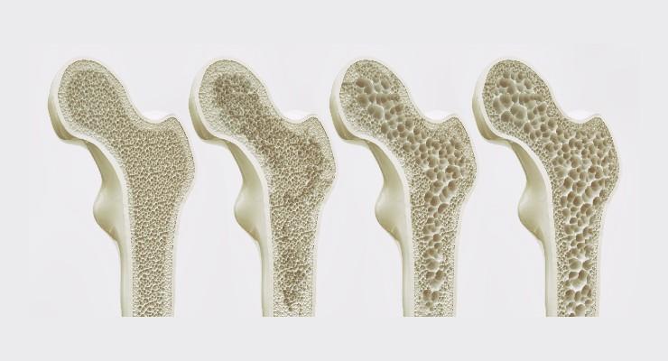 Osteoporosis Prevention Product Wins FDA Breakthrough Device Designation