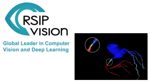 RSIP Vision Announces New Coronary Artery Segmentation Tool
