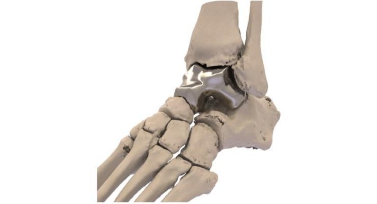 FDA OKs Additive Ortho