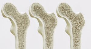 Preliminary Study Links Markers of Impaired Bone Health to Vegan Diet