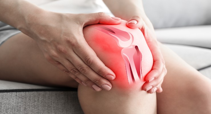 Bioventus Begins Trial of MOTYS (PTP-001) to Treat Knee OA
