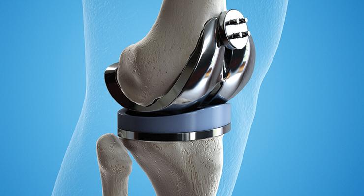 Development Options: Orthopedic Device Design