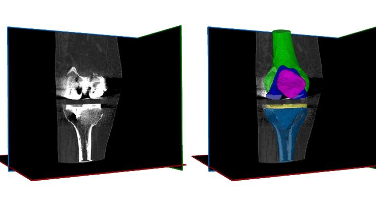 RSIP Vision Announces Metal Implant & Anatomical Segmentation Tool
