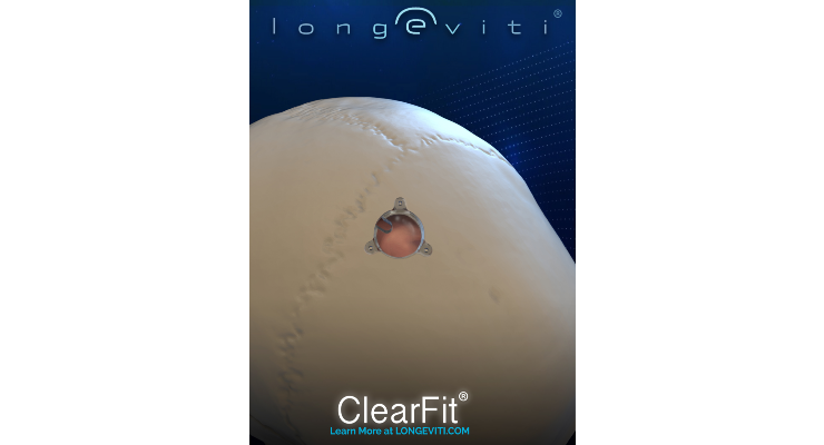 Longeviti Launches ClearFit Covers for Brain Surgery Patients
