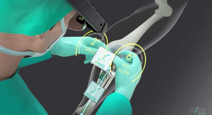 Pixee Medical's Knee+ Orthopedic Solution Cleared by FDA
