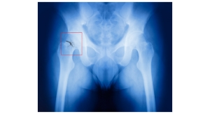 Delirium, Pneumonia Most Risky Complications After Hip Fracture Repair