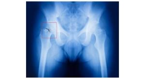 Delirium, Pneumonia Most Risky Complications After Hip Fracture Repair