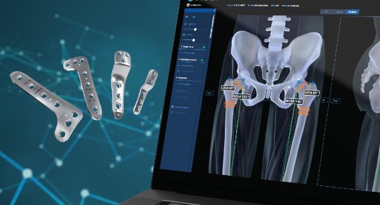 FDA Clears Orthofix