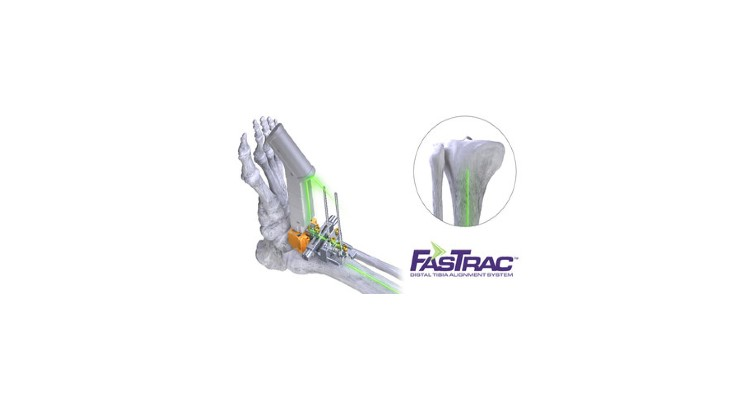 Paragon 28 Conducts Total Ankle Replacement Using Laser Tech