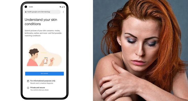 Google Develops AI Tool That Can Help Identify Skin, Hair and Nail Issues