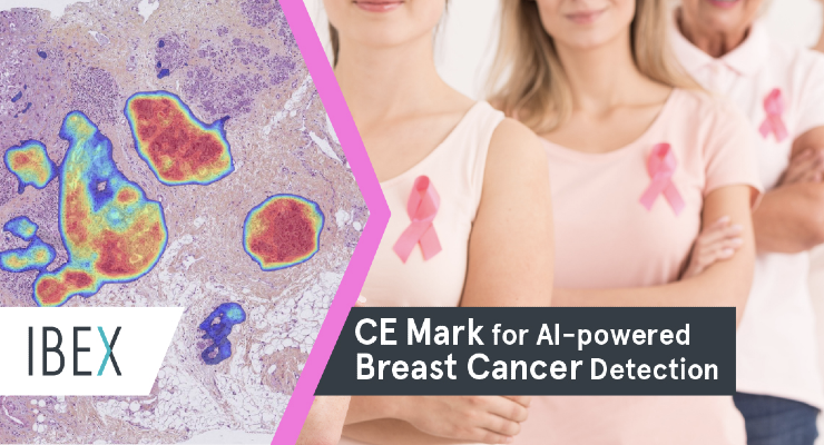 Ibex Medical Analytics Earns CE Mark for Galen Breast Solution