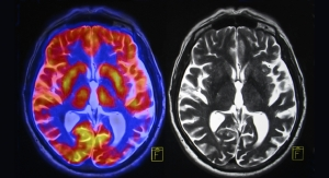 FDA Approves Aducanumab To Treat Alzheimer's Disease