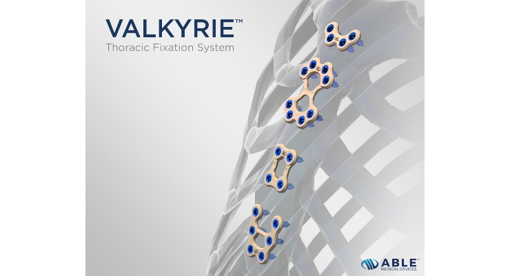 Able Medical Devices Rolls Out Valkyrie Thoracic Fixation System