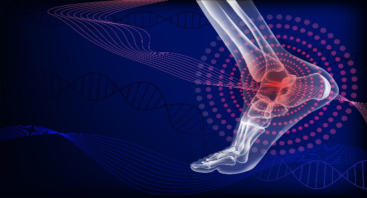 Study: Use of Ankle Replacements Vary Considerably by Country