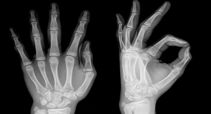 Self-Powered Implant Stimulates Fast Bone Healing, Then Disappears