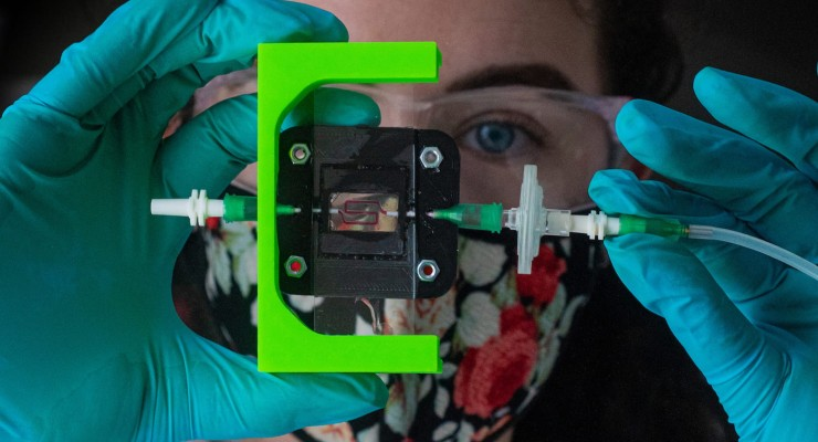 Rice Team Building Insulin-Producing Implant for Type 1 Diabetes
