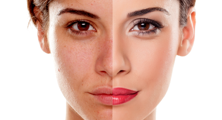 The Rise of the #NoMakeup Movement Coincides with an Increase in Cosmetics Sales
