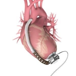 FDA Panel Gives Cautious Nod to HeartWare