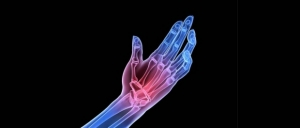 Vitamin C Proves Promising for Rheumatoid Arthritis
