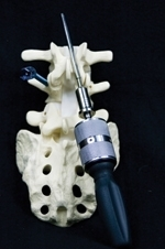 Double Drive Medical Adapts Drill Technology for Surgical Arena